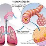 Một số bài thuốc dân gian trị viêm phế quản có hiệu quả cao